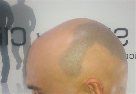 How To Cut Alepecia Areata Hair | spot baldness spot hair loss treatment alopecia areata