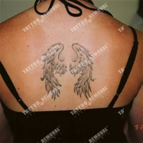 tattoo removal in san diego removal laser clinic removal clairemont