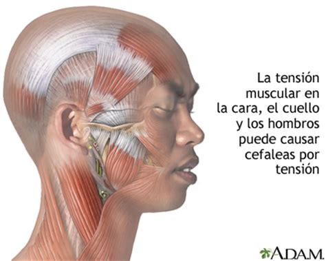 dolor cuero cabelludo mujer cefalea tensional medlineplus enciclopedia m 233 dica