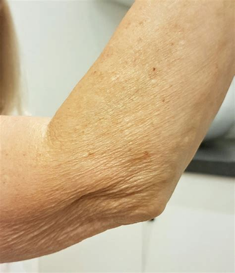crepey skin on arms crepey skin treatment arms chest neck legs lorena oberg