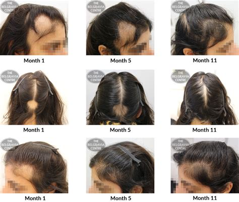 pattern of hair loss female pattern hair loss success stories