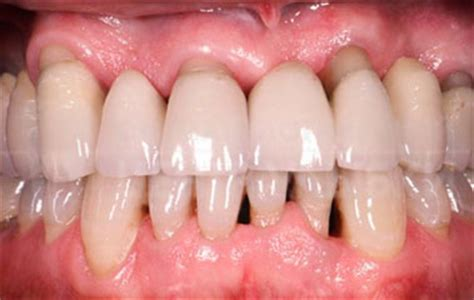 bright smile best dental clinic in dubai