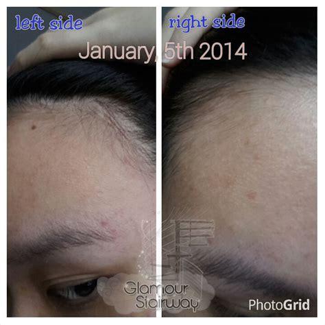Aminexil Loreal Expert Series Serum Tonik Rambut Rontok Hair Fall Loss 301 Moved Permanently