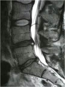 protusion discal atenci 243 n taringa