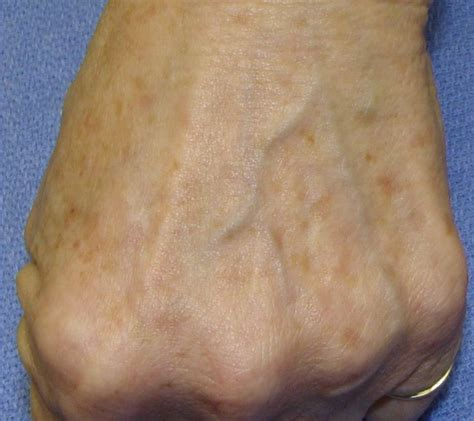 Chocolate Spots by Brown Age Spots On All About Hyperpigmentation