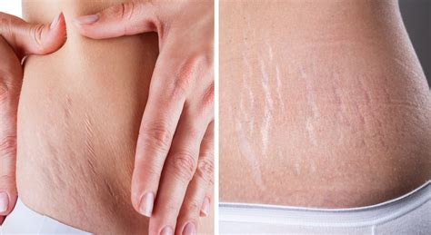 Stretch Marks by Stretch Removal Inverness