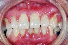 diabetes  osteoporosis linked  gum disease
