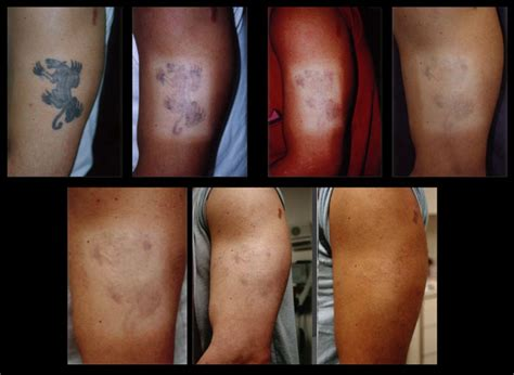 tattoo removal colors picosure