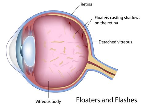 flashes of light in eye and floaters what causes floaters and flashes of light in the eye