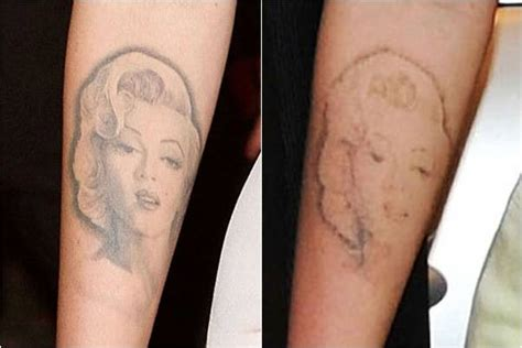 painful tattoo removal zoom tattoos megan fox removal is quot incredibly