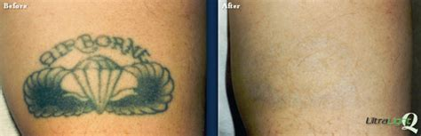 laser tattoo removal memphis removal tn the langsdon clinic germantown