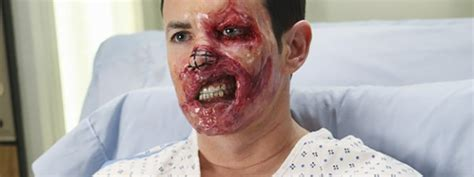 grey s anatomy face transplant actor scarface warpaintmag