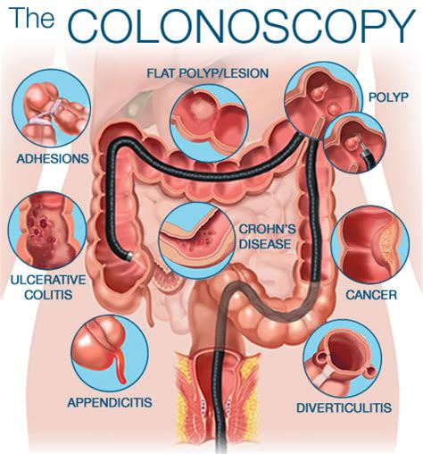 what does getting sectioned mean colonoscopy eugene gastroenterology consultants