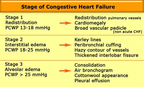 congestive failure late stages stage 3 failure