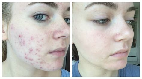 Tips Acne Skin Clear Methods by Get Clear Acne Free Skin Fast And Naturally