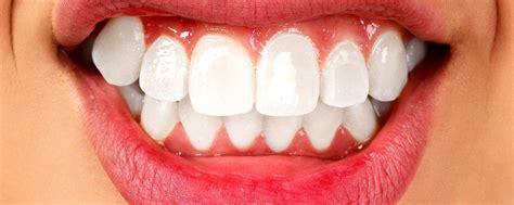 Pelindung Gigi Saat Tidur Kebiasaan Menggeretak Gigi Saat Tidur Apakah Berbahaya