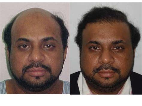 hair transplant india delhi mumbai youtube big baldness hair transplant india hair transplant delhi