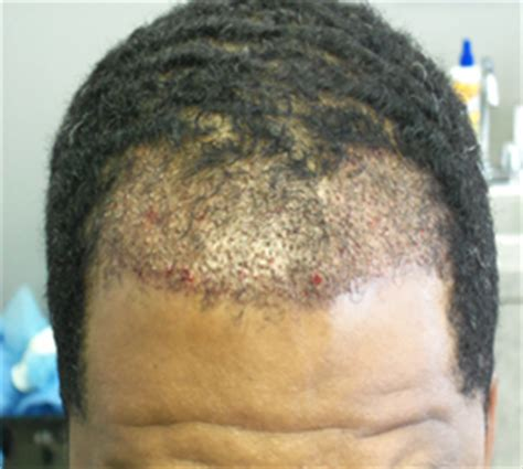 african american hair transplant dr william d yates md quot the hair loss expert quot african
