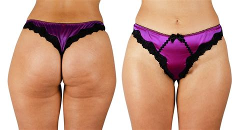 donne col sedere di fuori a woman s and thighs get rid of cellulite fast