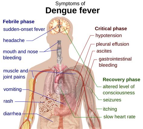 Suffering From Deadly Disease by Suffering From Dengue Virus Read Out The Symptoms