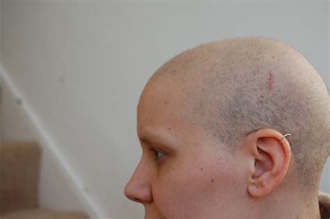 photos of hair growth after chemotherapy march 2010 hair growth after chemo