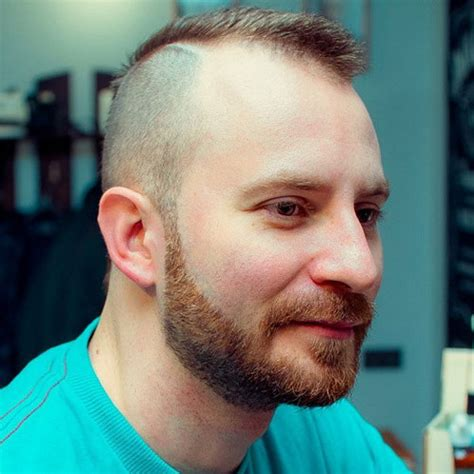 high and tight for receding hairline hairstyles for balding men