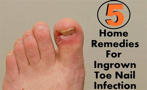 pin treatment infected ingrown hair on