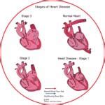 chf end stage end stage congestive failure symptoms