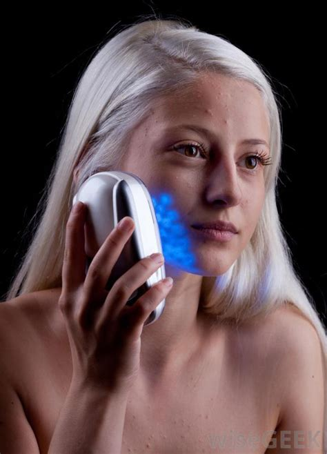blue light treatment for face does blue light therapy really cure acne with pictures
