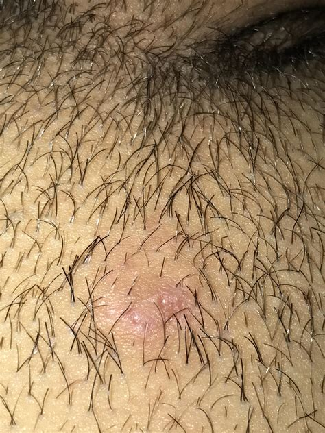 mons pubis hair ingrown hair on mons pubis cyst there seems to be no