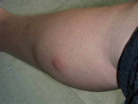 lump on s leg leg cyst pictures