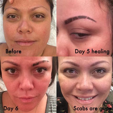 eyebrow tattoo scabbing 15 flaking 10 best images about microblading