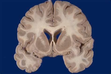 coronal section of human brain neuroanatomy