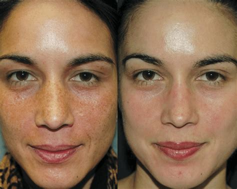 light chemical peel before and after chemical peels alexandria va