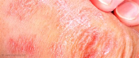is pic psoriasis the skin what condition new psoriasis diabetes and obesity may share a link to chronic skin