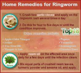 home remedy home remedies for gout top 10 home remedies