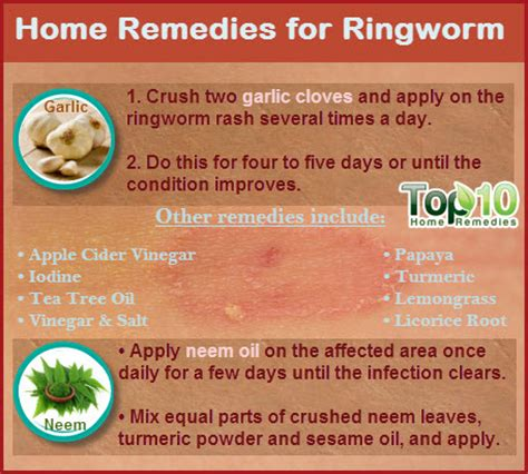 home remedies for ringworm top 10 home remedies