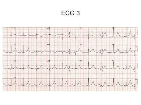 pattern recognition ecg st elevation