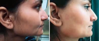 laser hair removal for black or dark skin in philadelphia pa