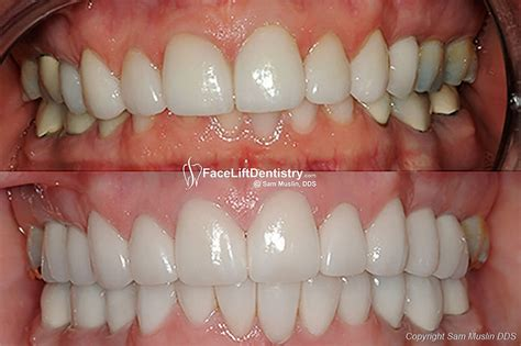 with an overbite overbite correction and bad porcelain veneers replaced with lift dentistry 174