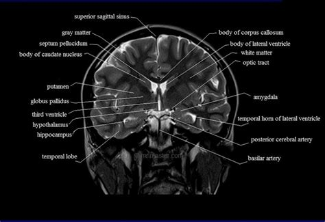 mri cross sectional anatomy brain brain anatomy mri coronal brain anatomy free mri cross
