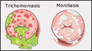 trichomoniasis discharge color vaginitis
