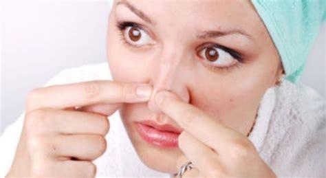 perawatan kulit wajah berminyak  berkomedo secara alami