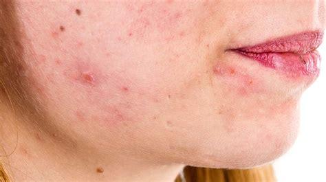 home remedies to treat seborrheic dermatitis hair loss