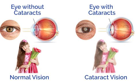 Resume Normal Activities After Cataract Surgery Cataract Surgery In Pleasanton Ca Auker Eye Associates