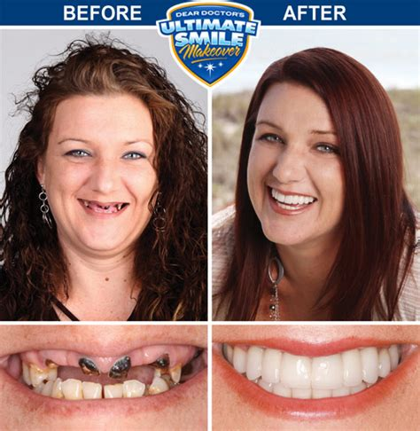 make over smile makeover contest winner heather cosmetic dental