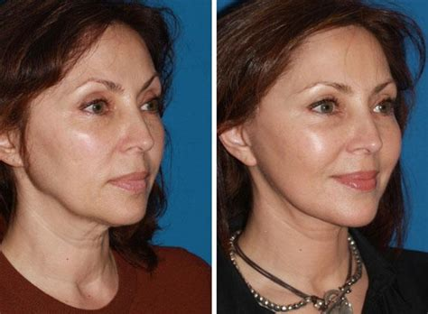 Is A Mini Lift A Facelift Alternative by Facelift In Manhattan Nyc Rejuvenation