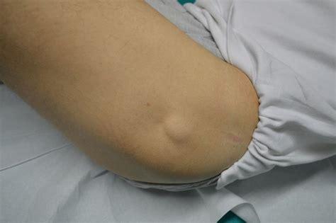 ciste interno coscia lipoma sottocutaneo su schiena o collo sintomi e asportazione