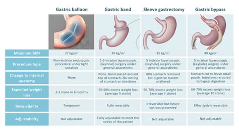 Useful Tips On Dieting by 17 Best Images About Bariatric Sleeve Surgery On
