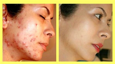 How To Get Rid Of Acne Scars by Top 4 Ways How To Get Rid Of Acne Scars Overnight